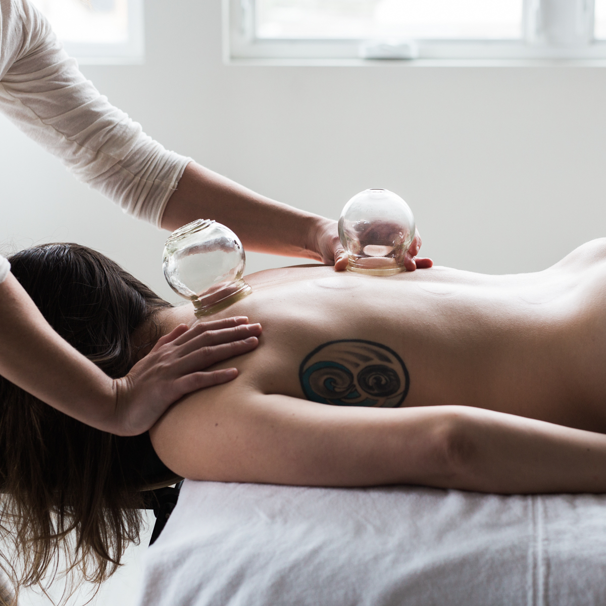 Wellness_Collective_Acupuncture_Cupping-242